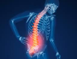Osteoporosi: fattori di rischio e prevenzione.